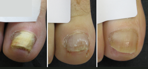 Get rid of toenail fungus with the combination of two natural oils1