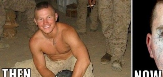 Young Veteran threw himself on a grenade to save his comrade. 5 Years later this is him..