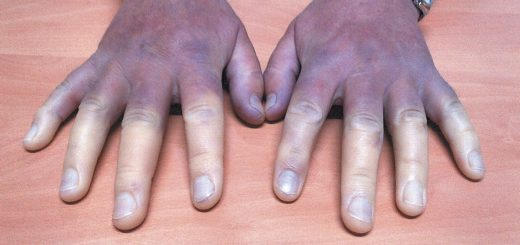 5 Unwanted side effects of poor blood circulation in the body