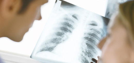 Does Lung Cancer have a gender bias? A study found shocking results