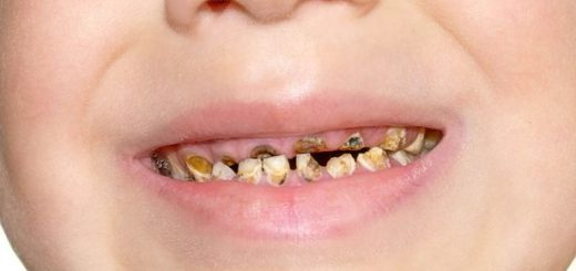 Does your two year old have rotten teeth? This may be the reason