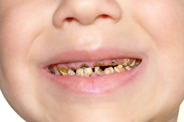 Does Your Two Year Old Have Rotten Teeth This May Be The