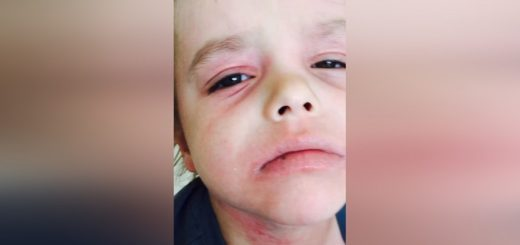 Mother finds a magic cure on Facebook for her son's medical condition