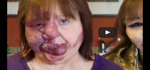 This woman born with a birth defect gets a makeover of a lifetime. This is how she looks now