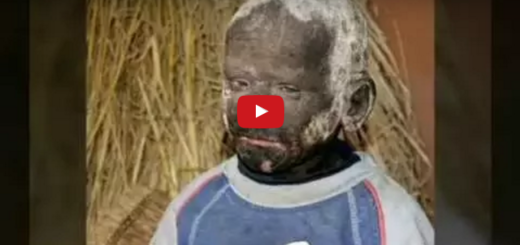 This 11 year old boy is turning into stone due to a rare skin condition, even suffers unbearable pain