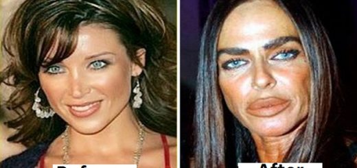 6 Shocking plastic surgery fails that will have you face palming big time