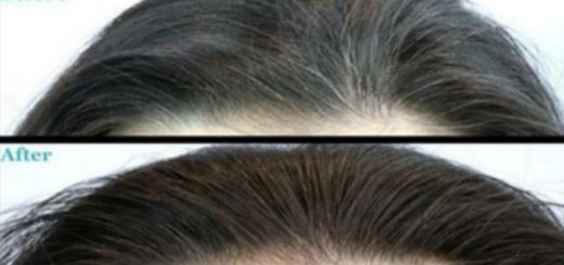 A miracle solution for removing Grey Hair and it actually works. This Is Amazing