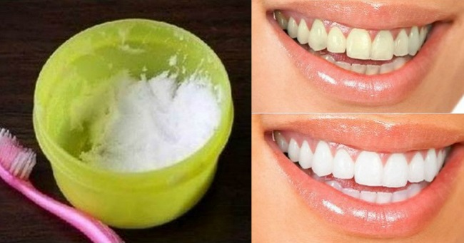 Can Natural Yellow Teeth Be Whitened