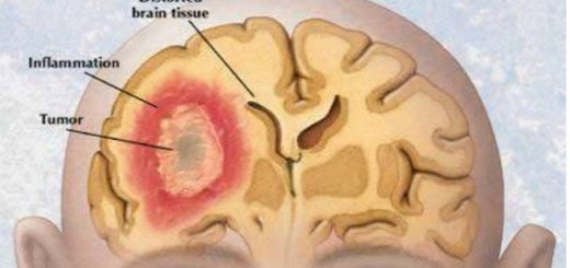 Fascinating new research formulates Liquid Aspirin Solution can cure Brain Cancer