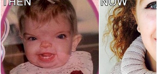 Girl with rare facial condition undergoes remarkable transformation through surgery