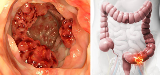 Scientists find that this oil can kill 90 of colon cancer cells in just 2 days