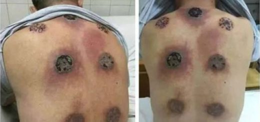 This guy almost lost life by overdoing an alternative medicine technique