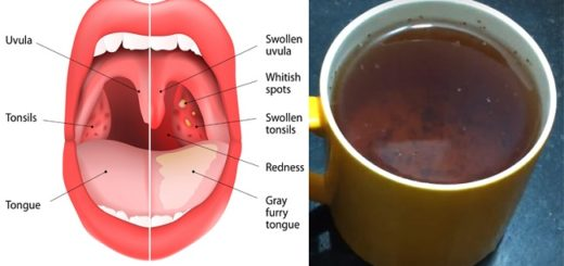 This super tea is a wholesome remedy to cure strep Throat, Sinus Infection and much more