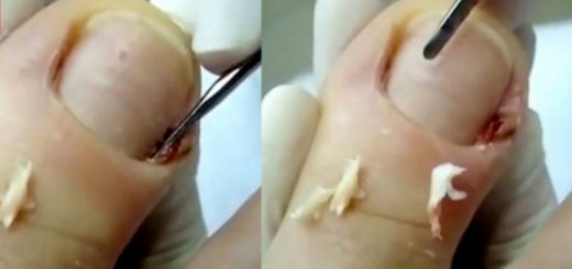 When this dermatologist starts cleaning a patient's Toe, something dreadful and nasty pops out