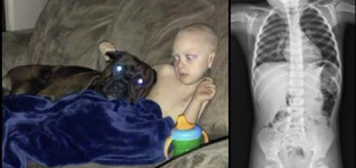 Her active 3 year old son wouldn't budge from the couch, then doctors detect something shocking!