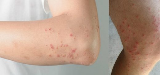 The location of your Body Acne can reveal several problems about your health