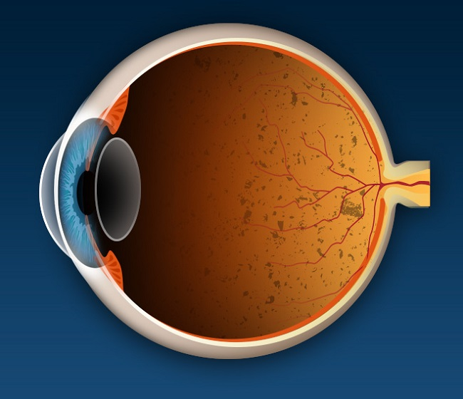 What is Retinis Pigmentosa or RP