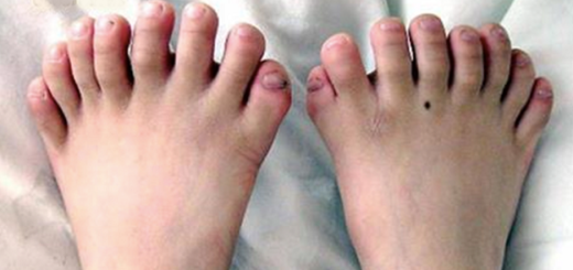 5 People with Mysterious Extra Body Parts That Puzzled Even Doctors