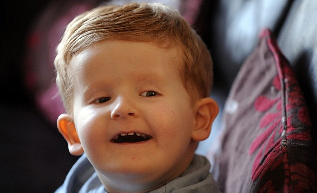 Alfie Clamp was born with severe disabilities